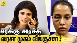 ரைசா பொய் சொல்றாங்களா? : டாக்டர் அதிரடி பேட்டி | What Really Happened to Raiza? Doctor Explanation