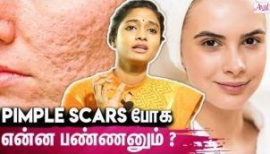 90 % Pimples Scar's ஆக மாற வாய்ப்பு இருக்கு - Dr Archana