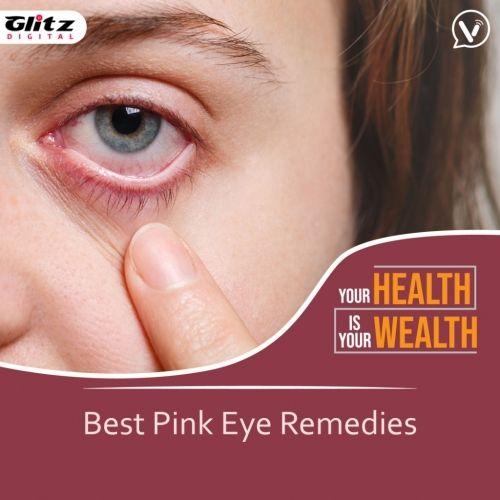 Best Pink Eye Remedies