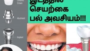 Important Reasons to Replace Your Missing Tooth /எல்லாப் பற்களும் பழுதாகி விடும்
